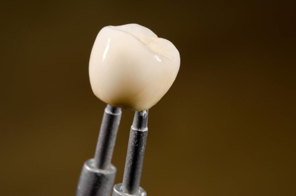 Dental crown | Dentist Monroe WA