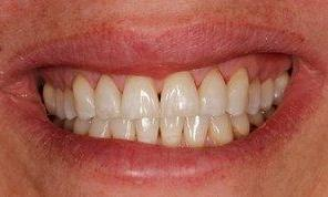 Tooth-colored fillings | Dentist Monroe WA