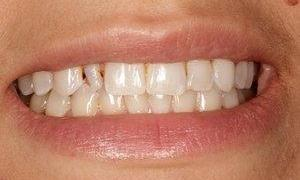 Small front tooth | Dentist Monroe WA