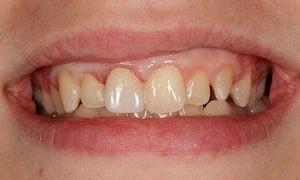 Tooth-Colored-Dental-Fillings-After-Image