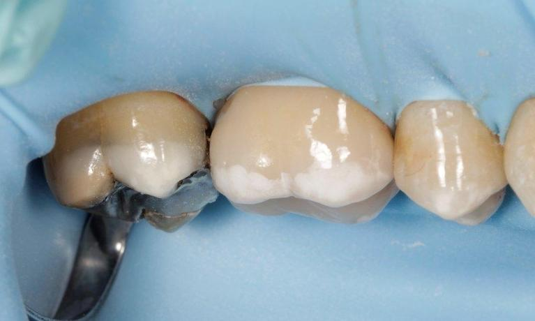 CEREC-Same-Day-Crowns-Before-Image