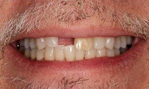 Implant-and-Porcelain-Crown-Before-Image