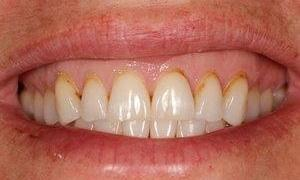 Tooth-Colored-Composite-Fillings-Before-Image