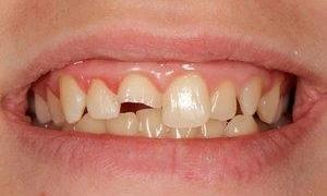 Tooth-Colored-Dental-Fillings-Before-Image